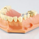 Top Tips And Techniques For Keeping Your Teeth Healthy